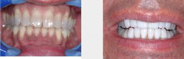 Dark protrusive teeth - smile enhancemnt with veneers