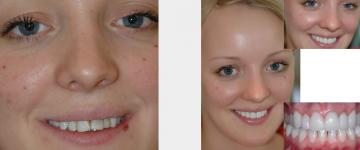 Upper front smile enhancement