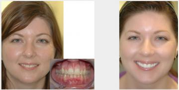 Upper veneers for malaligned teeth
