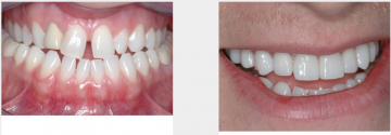 Malpositioned teeth 10 veneers