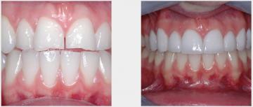 Cosmetic veneers correct chipped abraded teeth