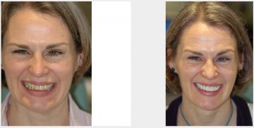 Upper smile enhancement
