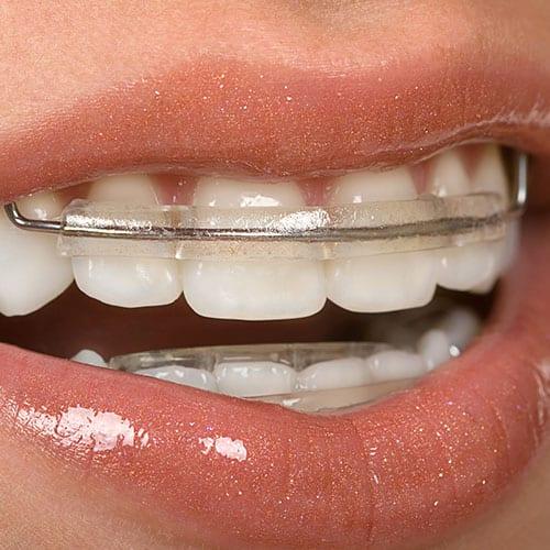 Dental Retainers | London Dental Studio